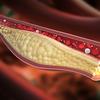 コレステロール値は低いほうが危険?がんや脳梗塞のリスク高まる…降下剤は服用厳禁