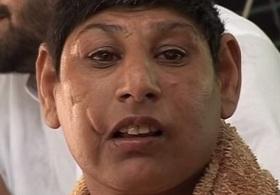 全員ネズミ顔!? パキスタンの「ラットピープル」に隠された闇