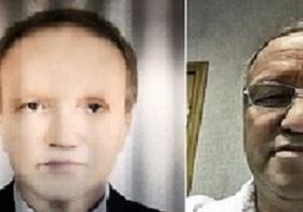 黒人からの肝臓移植で、肌が黒くなったロシア人! まったく別人のような見た目に!!