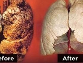 超簡単! ドス黒い喫煙者の肺が、たった3日でこんなに「真っ白」に!?