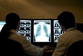 がん検診が「がん」をつくっている恐れ…胃がん検診に正当な根拠なし