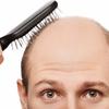 若いうちの薄毛化・大量の抜け毛に要注意!なぜ起こる?無理に止めると慢性化の危険