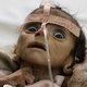 餓死する2日前の子どもの瞳…! 骨と皮になった生後5カ月の赤ん坊は絶望を見て死んだ=イエメン