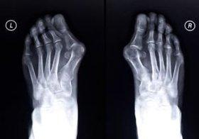 外反母趾も巻き爪も足の構造異常が原因だった!歪みを治すことで根治も可能