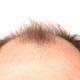 薄毛治療薬は危険!全身毛だらけ、寿命短縮、勃起不全、乳房肥大の副作用