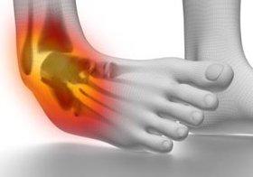 足首のケガで心臓や呼吸器系の障害リスクが上昇!膝や腰などの負担にも