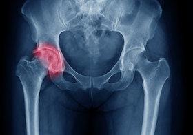 股関節が硬くて「腰痛」に~「かがむ」と「しゃがむ」の違い、ハムストリングスのストレッチにヒント
