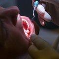 歯が抜け落ちる…歯周炎、「歯磨きで防げる」のまやかし、新事実浮上で理研が大規模研究
