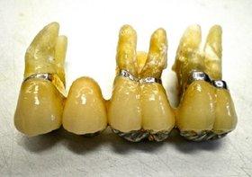 歯科医の間違った治療で歯を失う危険蔓延!安直なブリッジで歯がまとめて抜け落ち