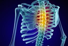 カイロプラクティック、死亡事故や脊髄損傷で障害残る例も…素人同然の施術者多く、見極め困難
