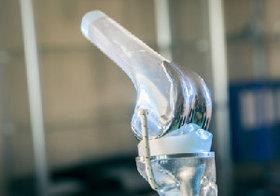 膝に痛みを抱える人は必見!96%が「受けてよかった」と答える画期的治療法