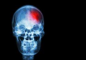 片足で20秒立てない…脳梗塞の兆候を見逃すな!下半身の衰えは重病や寿命短縮の危険