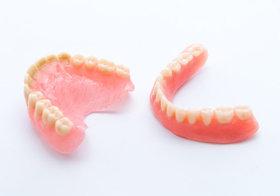 誤った歯科治療で頭髪がごっそり抜け巨大な円形脱毛症…入れ歯不調で虫歯や歯周病の危険