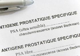 前立腺がん検診は受けるべきではない?早期発見には有効、一方かえってがんにかかるリスクも