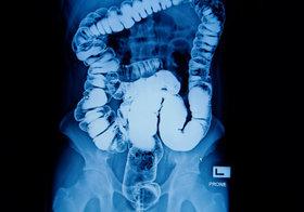 バリウム検査、なぜ発がんの危険&がん断定不可なのに実施?初めからピロリ検査しない事情
