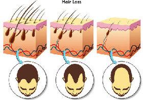 薄毛に悩む人は1200万人!治療効果が出るまで初期費用は18万円