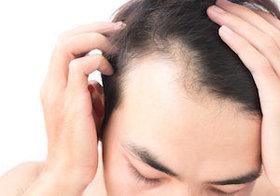 薄毛の悩みは、この髪型で解決?下手に隠すと不自然、M字型薄毛にはパーマがオススメ