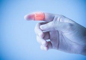 切断された指、「妖精の粉」で元通りに…失われた腕・足・器官の再生にも光明か