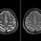 宇宙飛行士に深刻な健康被害?脳が上方にずれる異変…