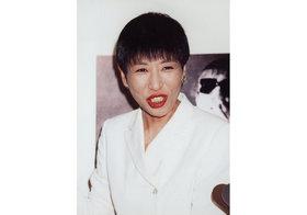 和田アキ子や宮根誠司が若返った眼瞼下垂症手術…左右の目の大きさが異なる例も