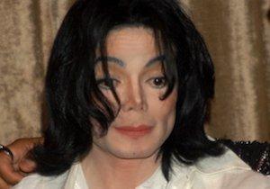 【確認待ち】マイケル・ジャクソンも悩んだ皮膚病「尋常性白斑」~治療新時代が到来の画像1