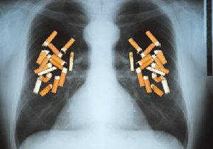 愛煙家や分煙支持派……中村獅童も驚愕!<軽いたばこ>が肺腺がんを招く!?の画像1