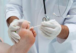 水虫の再発は50%! 完治するには皮膚が入れ替わる 「3ヵ月間」薬を……の画像1