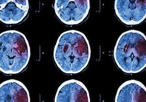失業で「脳卒中」が増える?再就職で発症率が約3倍、死亡リスクは4倍以上に!