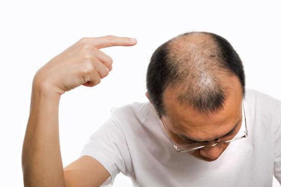 「ハゲ」「薄毛」がこの世から消滅か......最新研究「毛包(髪の元)」育成可能も、優先すべきは「女性型」?の画像1