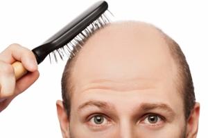 若いうちの薄毛化・大量の抜け毛に要注意!なぜ起こる?無理に止めると慢性化の危険の画像1