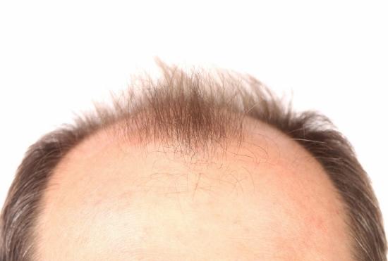 薄毛治療薬は危険!全身毛だらけ、寿命短縮、勃起不全、乳房肥大の副作用の画像1