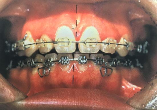 歯列矯正は超危険!全身に深刻な副作用のおそれ…食事や口の開閉が困難になる例も