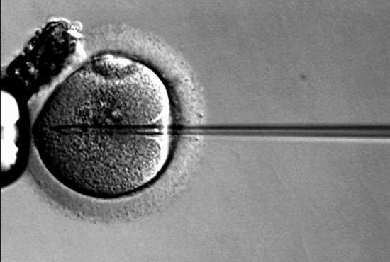 卵子凍結、激増で一般普及…女性の仕事と出産を両立、「子供への影響不透明」との指摘も