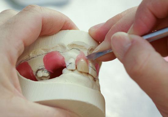 入れ歯はこんなに素晴らしい!粗悪品蔓延で要注意、インプラントより衛生的?