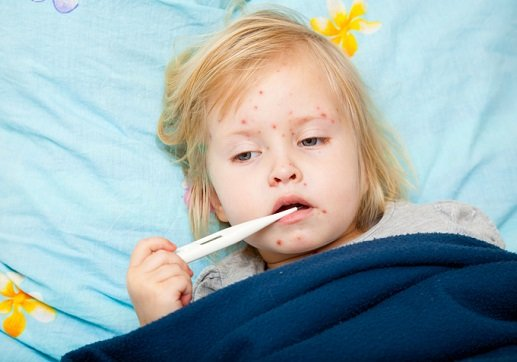 集団発生が多発の麻疹、ワクチンの予防接種は無意味?どんどん麻疹に罹ったほうがいい?