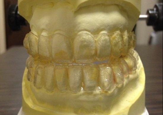 歯列矯正やマウスピース矯正で「噛み合わせ」がメチャクチャ…物が噛めなくなる事例多発