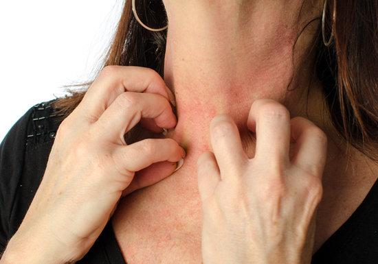 蚊やブヨの虫刺され、ナメると危険!掻くのは絶対NG!皮膚炎が全身に広がり治療困難もの画像1