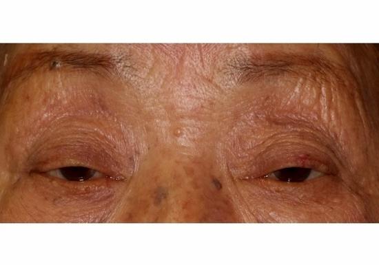 まぶたが垂れ下がる「眼瞼下垂」、なぜ20~30代に増加?自然治癒せず、重症化も