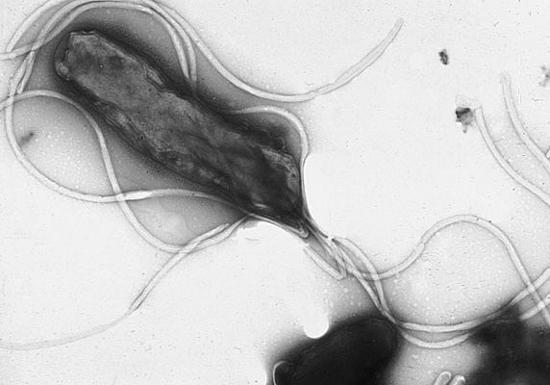 胃がんは防げる、患者の99%は胃の中にピロリ菌…専門医はバリウム検査より内視鏡を推奨