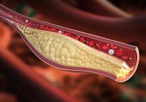 コレステロール値は低いほうが危険?がんや脳梗塞のリスク高まる…降下剤は服用厳禁の画像1